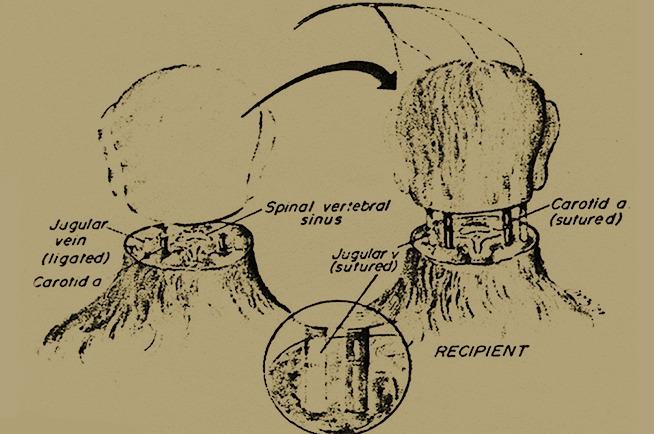 頭部移植手術